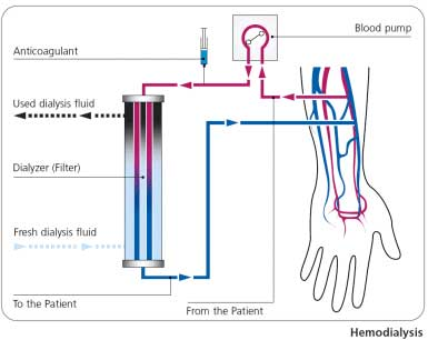 Kidney Dialysis also known as Hemodialysis, image Fresenius Medical Care